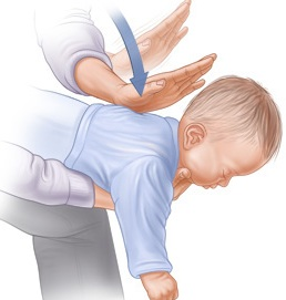 Infant Child CPR Prenatal Classes Toronto